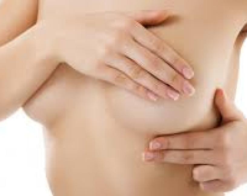 Plaguicidas y càncer de mama