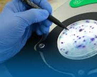 Indicadores microbiológicos para control de la higiene en la industria alimentaria