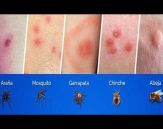 Cómo identificar picaduras y mordeduras de insectos
